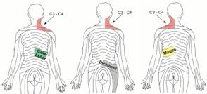 Schulterschmerzen Nach Laparoskopie