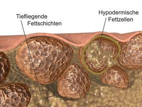 Männer cellulite cellulite