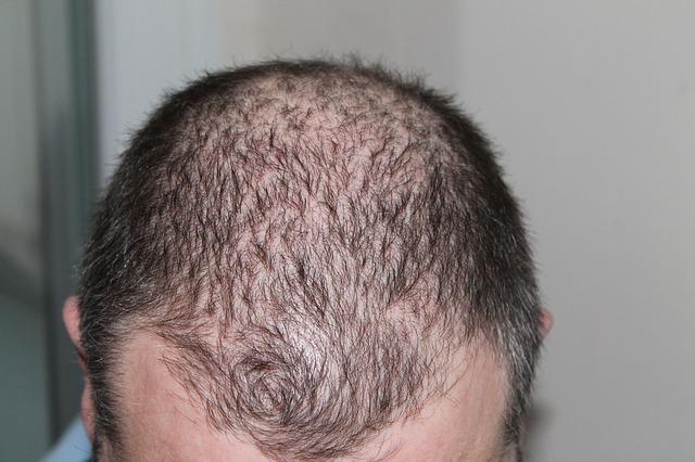 Das Haar prolabiert mit der Zwiebel was, das Foto zu machen